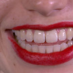 Ingrid Bachmann, Smile, 2017